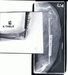 Monica Gartner's Bone X-Ray